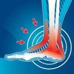 foot-pain-1024x943